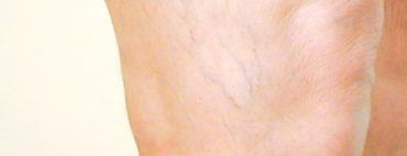Neues Verfahren bei Krampfadern : VenousClosure FAST®