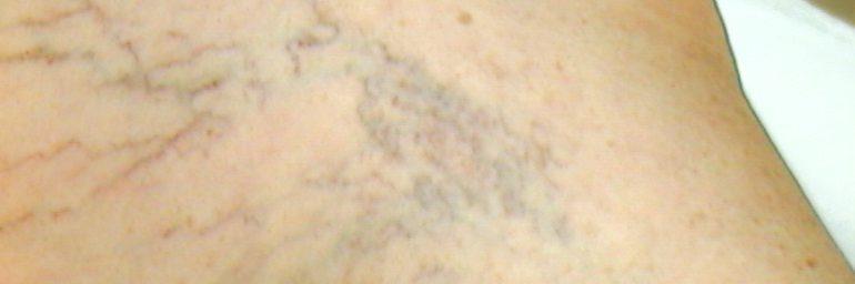 Krampfadern: Radiofrequenz – Verödung statt Stripping