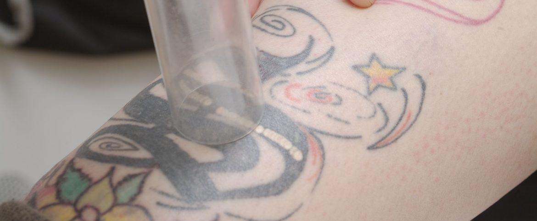 Laser Tattoo Entfernung